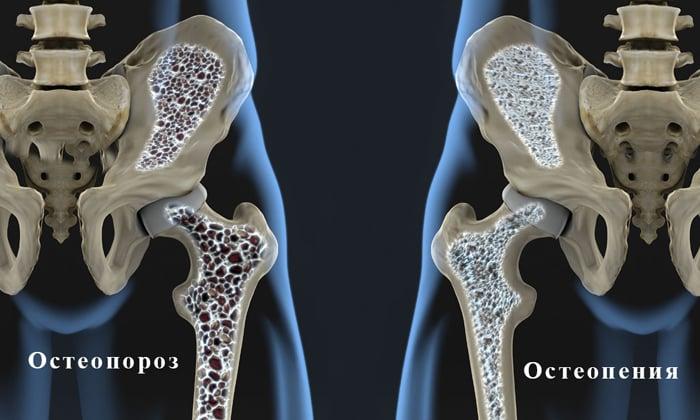 При остеопении Миакальцик принимается ежедневно в дозировке 200-400 МЕ
