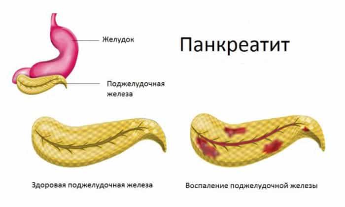 Противопоказано при панкреатите - острой либо хронической форме в стадии обострения