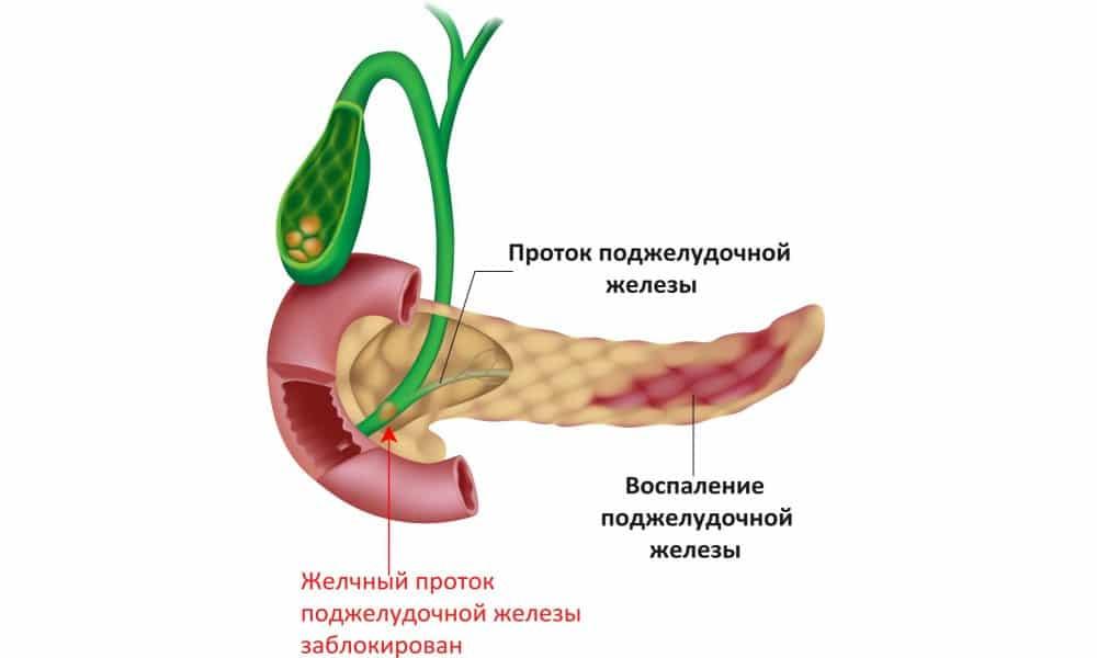 Свечи Метилурацил - эффективное средство для лечения воспаления поджелудочной железы. Способствуют ускорению процесса восстановления слизистых оболочек