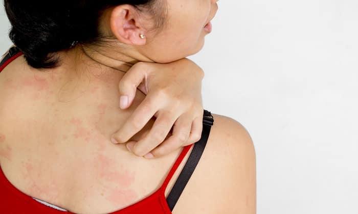 симптомами аллергии: зудом, сыпью