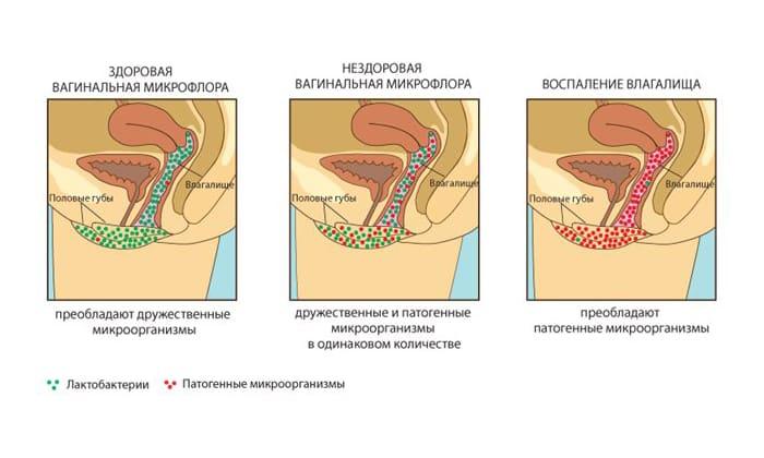 Гексикон прописывают для лечения различных форм кольпитов и бактериального вагиноза
