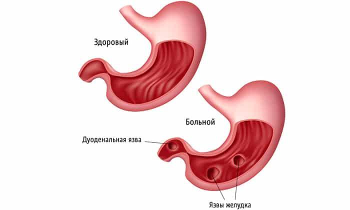 Препарат используется в составе комплексного лечения таких заболеваний как язвенные поражения желудка и 12-перстной кишки