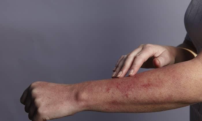 На препарат может возникнуть аллергическая реакция: кожный зуд, крапивница и т.п
