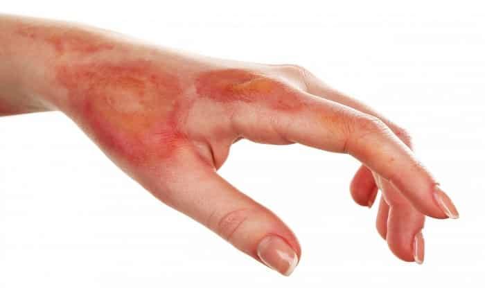 С помощью Абактала лечат кожные болезни: ожоги, ранения и т.п