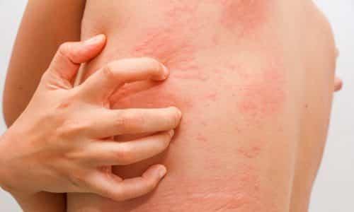 Аллергические реакции (слезотечение, чихание, высыпания на коже) при лечении Гастенормом возникают редко