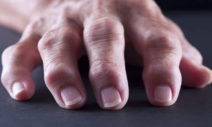 Абактал применяется для лечения артрита