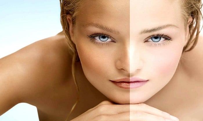 Побочные действия препарата могут выражаться через бледность кожи