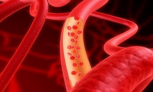 Раствор для инъекций расширяет артерии, улучшая кровоток
