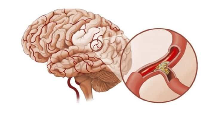 Одновременное применение препаратов обеспечивает устранение спазмов сосудов