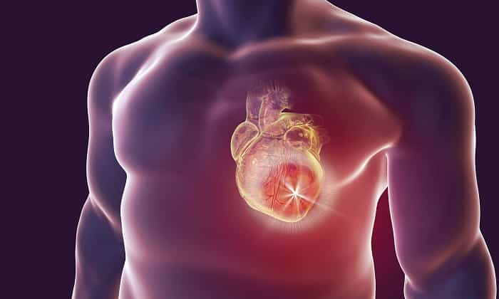 Милдронат показан при инфаркте миокарда