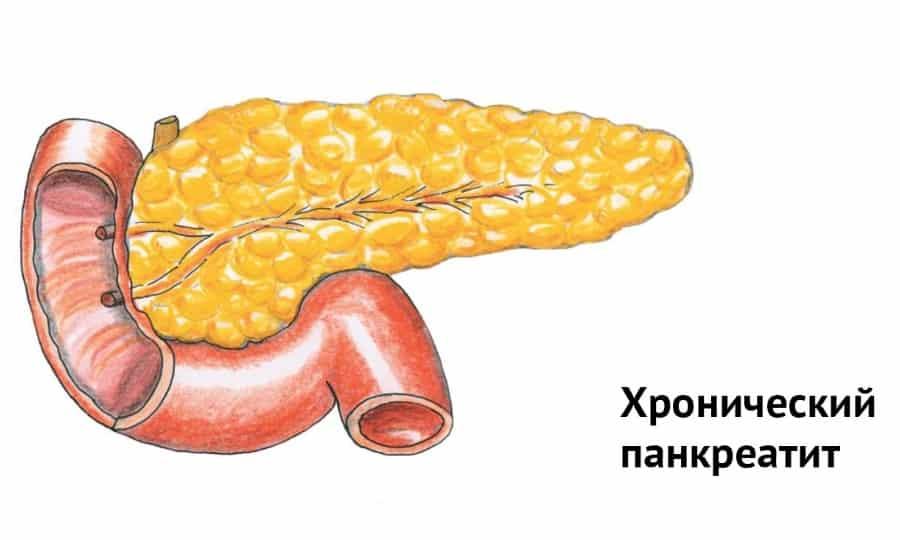 Хронический панкреатит (в стадии ремиссии) является показанием к применению Микразима или Креона