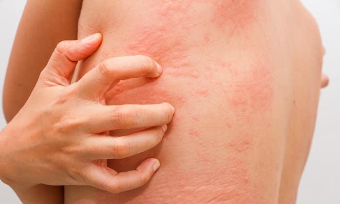 Крапивница - один из возможных побочных эффектов