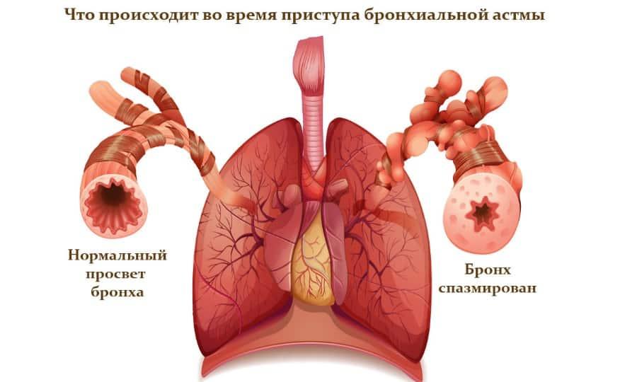 При приеме Гевискона не исключены аллергические проявления в виде спазмов бронхов