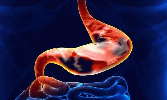 Препарат противопоказан при язвенном поражении слизистой органов ЖКТ