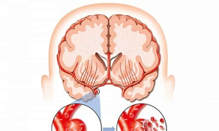 Уколы назначают при остром нарушении кровоснабжения мозговых тканей