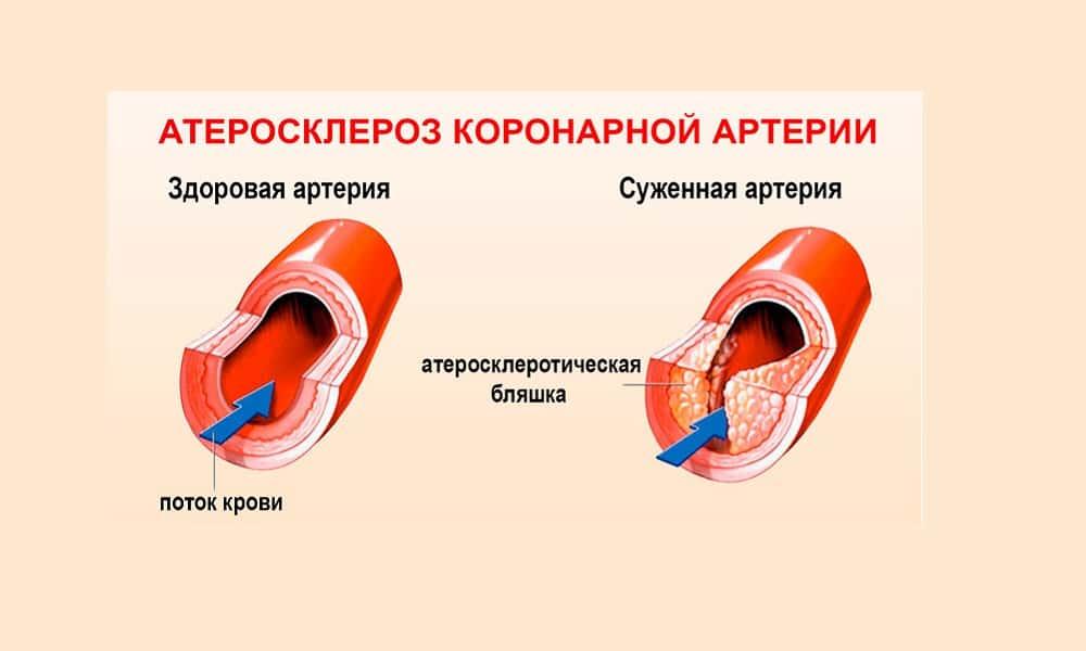 Атеросклероз коронарных артерий - показание, при котором принимать средство следует с осторожностью