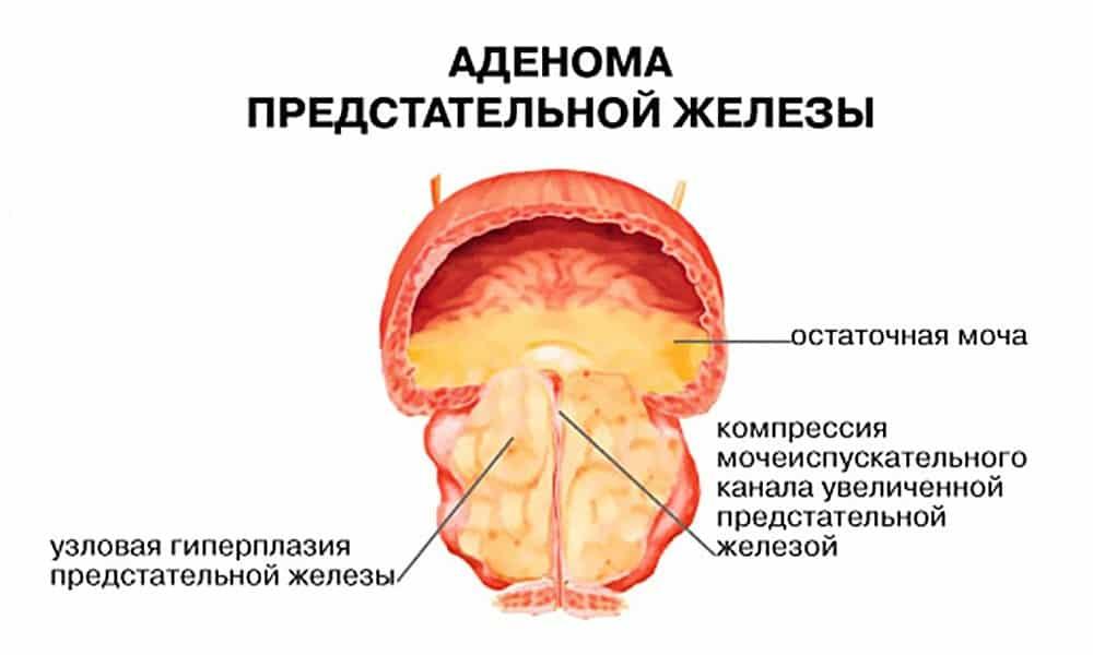Спазоверин следует принимать с осторожностью при таком заболевании как аденома предстательной железы