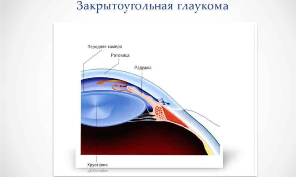 Спазоверин принимают с осторожностью при закрытой глаукоме