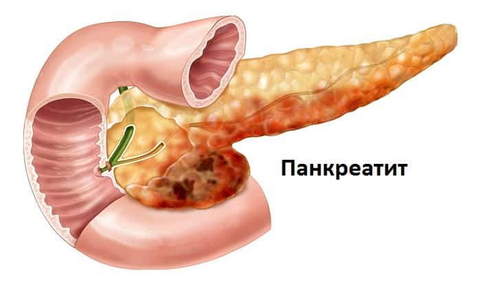 Спазоверин назначают при панкреатите