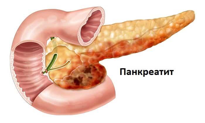 Препарат принимают при панкреатите