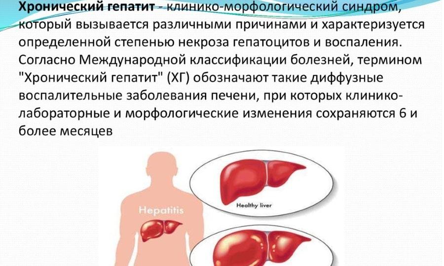 Хронический гепатит является показанием к применению Аллохола и Панкреатина
