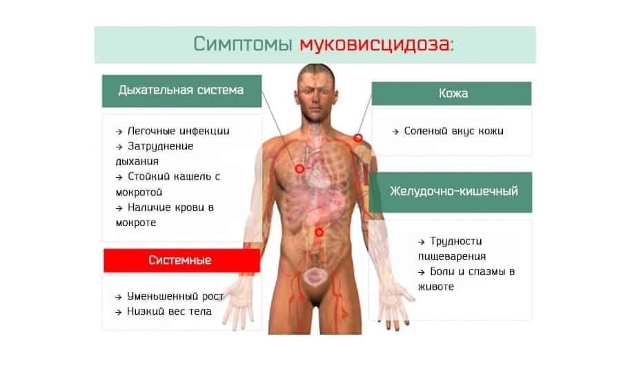 При муковисцидозе врачи рекомендуют употреблять Микразим или Креон