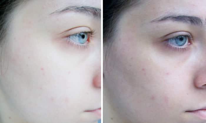 Передозировка может спровоцировать бледность кожных покровов