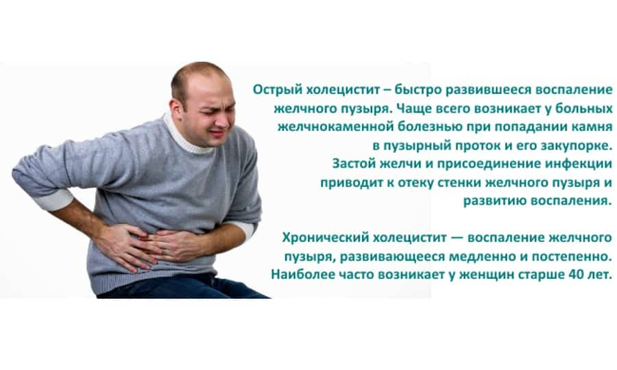 Аллохол или Панкреатин врачи выписывают при холецистите