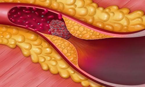 Назначают Мексидол 125 мг для устранения последствий атеросклероза