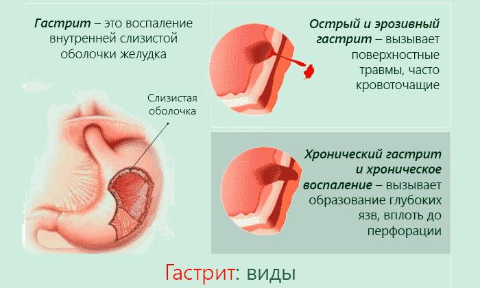 Препарат назначается при гастрите в любой форме