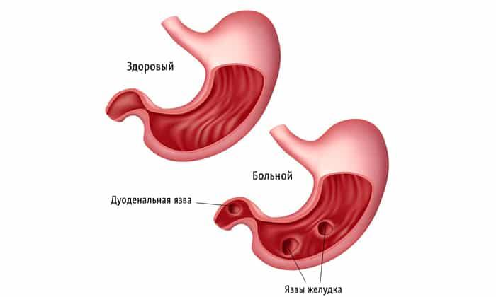В редких случаях препарат назначается для устранения острых признаков язвенной болезни желудка