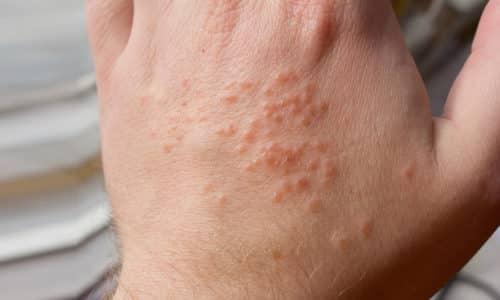 Нельзя применять лекарство, если у пациента есть выраженные аллергические реакции
