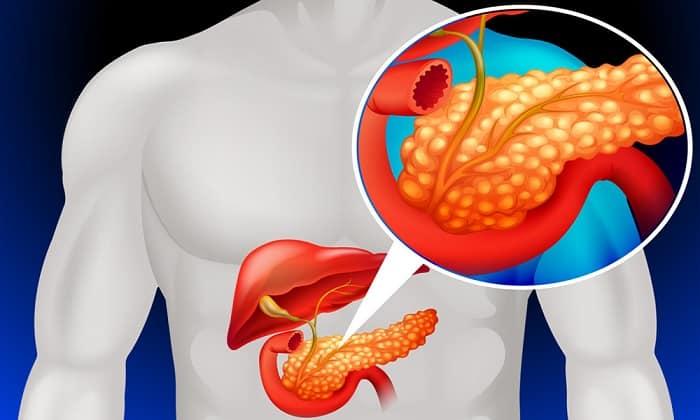Хронический панкреатит - показание к приему лекарства