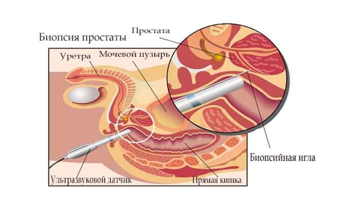 Достаточно часто лекарство назначается перед и после проведения некоторых болезненных диагностических процедур
