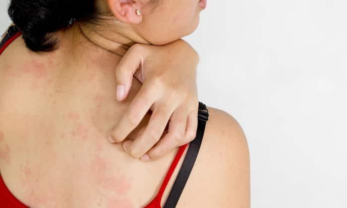 В числе побочных явлений встречаются симптомы аллергии