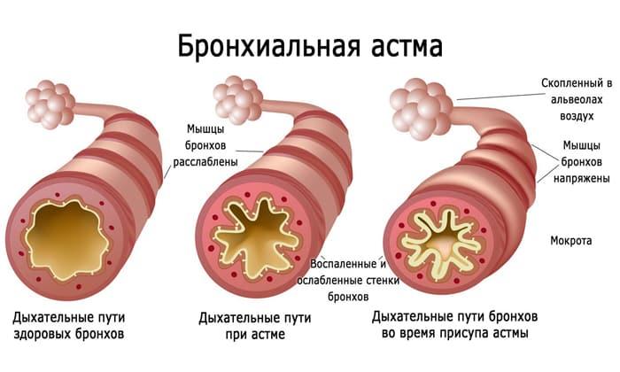 При бронхиальной астме препарат противопоказан