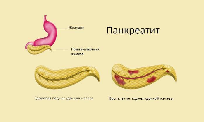 Средство применяется для лечения острого панкреатита