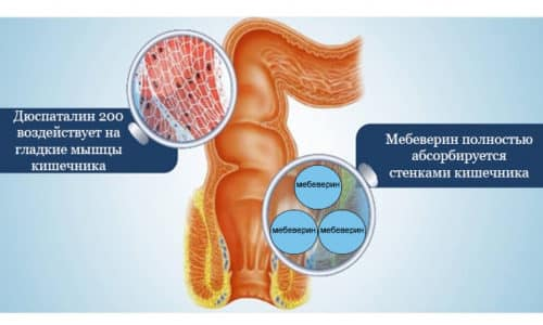 Спазмолитический препарат, обладающий миотропной активностью, воздействуя на гладкие мышцы кишечника, активный ингредиент мебеверин полностью абсорбируется стенками кишечника