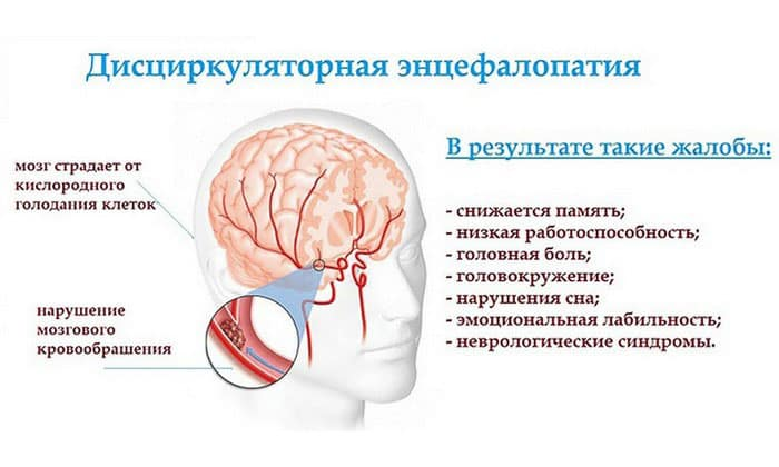 Применение Мексиданта благодаря его выраженному ноотропному действию оправдано при таком заболевании, как энцефалопатия дисциркуляторная
