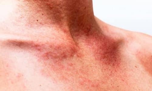 У препарата один побочный эффект - аллергическая реакция в виде крапивницы