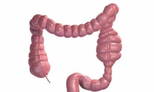 Непроходимость кишечника – одно из противопоказаний для приема медикамента Мотилиум