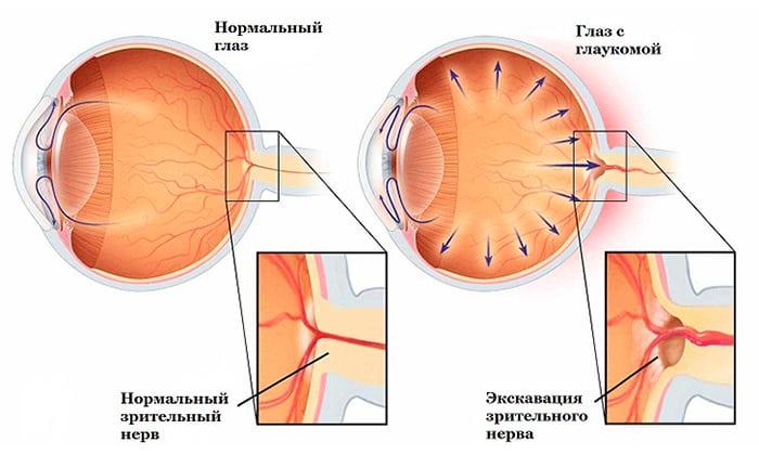 Противопоказан прием препарата при закрытоугольной глаукоме