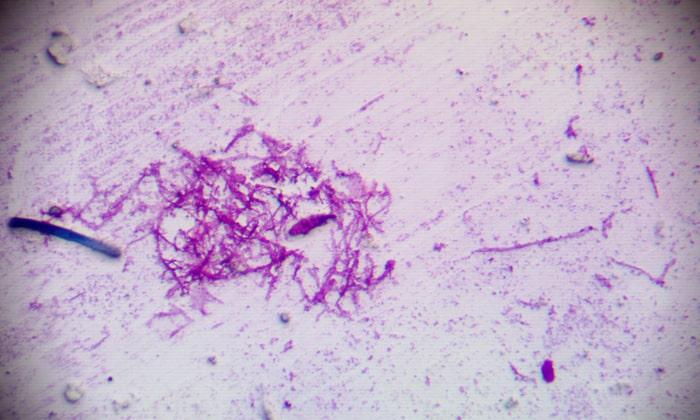 Cредство рекомендовано при бактериальных и грибковых инфекциях