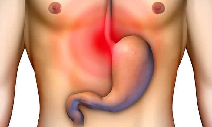 При передозировке лекарства возникает боль в области желудка