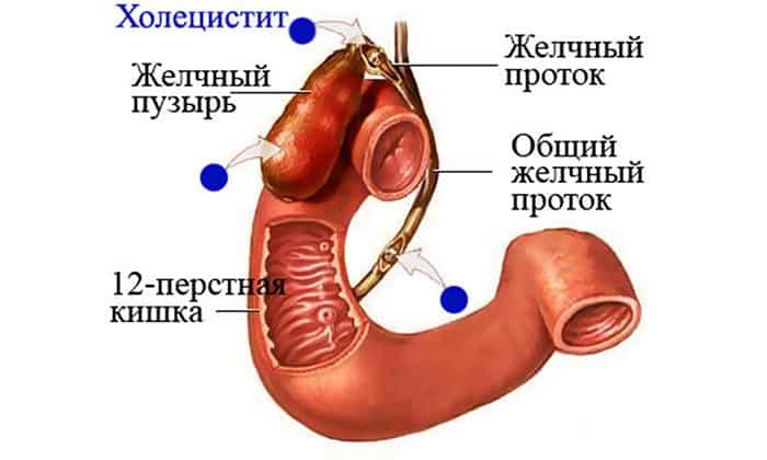 Препарат предназначен при хроническом холецистите