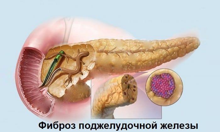 Препарат проявляет эффективность при лечении фиброза поджелудочной железы