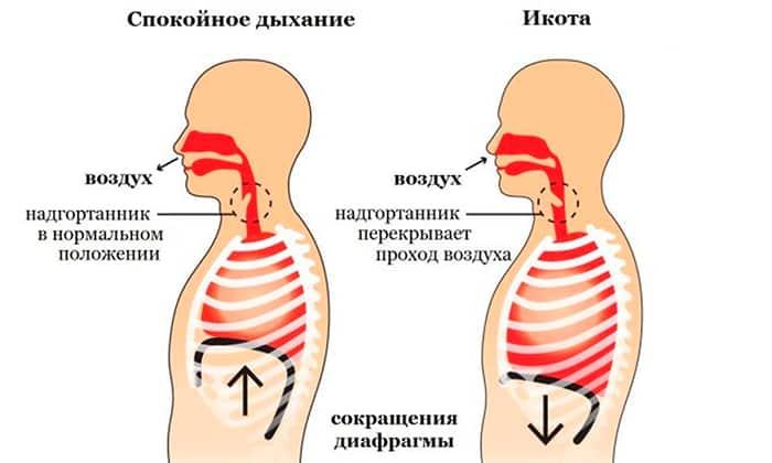 Домперидон-Тева рекомендуется к использованию при икоте
