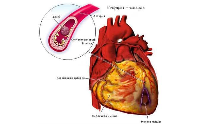 Человек чувствует сильную боль при инфаркте миокарда
