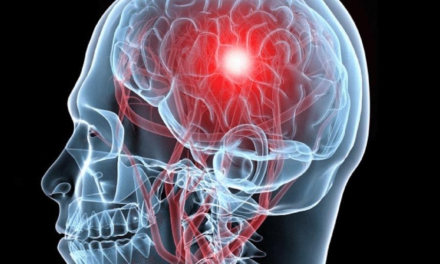 При ишемическом инсульте назначают увеличенные дозы Глицина