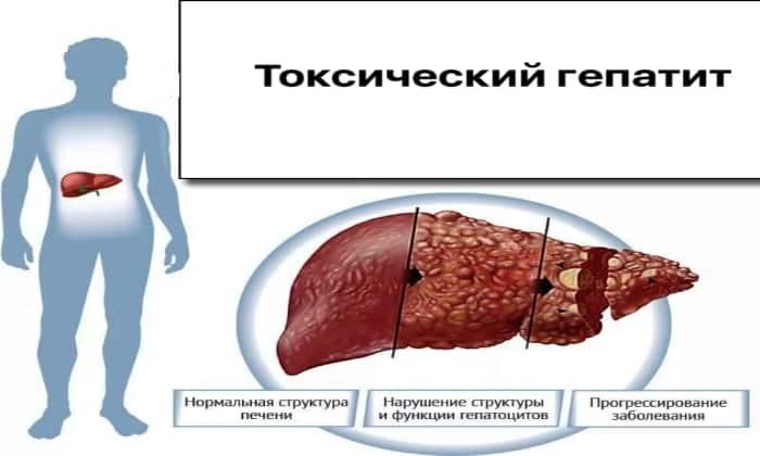 Препарат назначают при гепатите